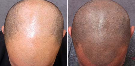 Scalp Micro Pigmentation in Phuket, Thailand